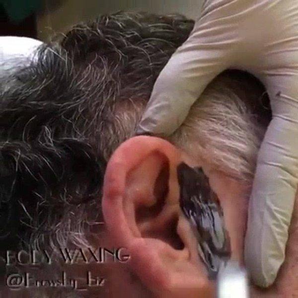 Cera de depilação que usa na orelha para retirar todos os pelos!